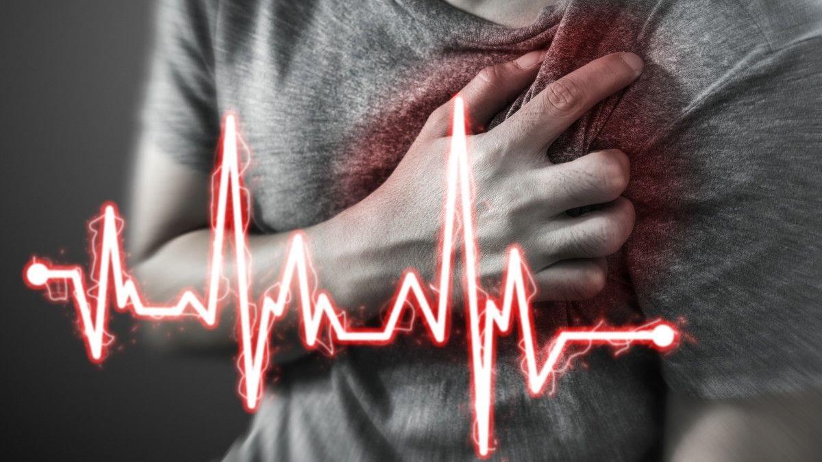Serangan jantung (ilustrasi)